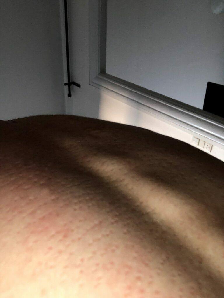 mærker på ryggen efter akupressur måtte
